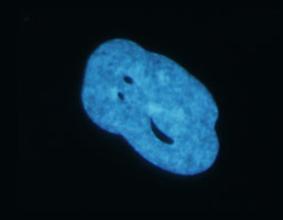 Distorted LAP1 Nucleus